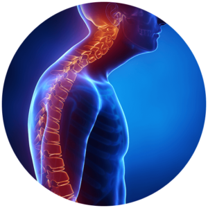 kyphosis in thoracic and cervical spine